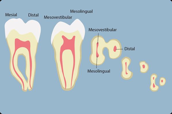 Preclínica endodoncia